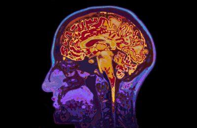 Cercetătorii au descoperit o genă care suprimă simptomele Alzheimerului
